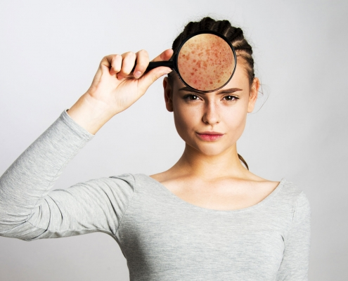 érythrose-du-visage