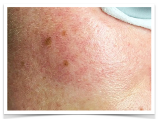 erythrose-faciale-visage